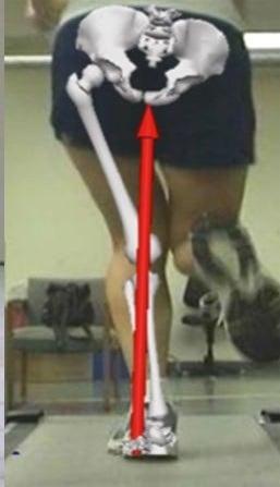 علاج تقوس و إعوجاج الركبتين إلى الداخل بالتمارين بدون جراحة.Knee Valgus 11