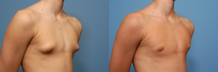 Male-Breast-Reduction--Gynecomastia-Dr.-Bruce-W.-Van-Natta-528