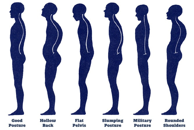 How_to_fix_posture