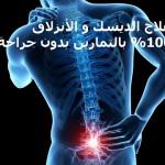 علاج ديسك الظهر و الأنزلاق الغضروفي بالتمارين بدون جراحة 17
