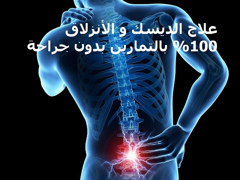 back-pain-spine egy image