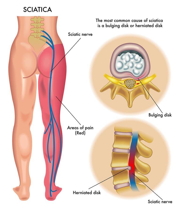 أعراض ديسك الظهر الفقرة الرابعة و الخامسة