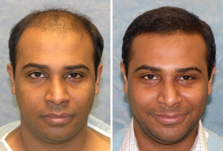 الطرق الطبيعية و العلمية الحديثة لإنبات الشعر 1
